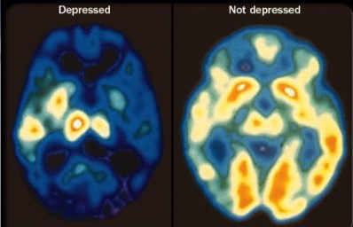 depression-brain